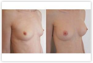Augmentation mammaire par prothèses rondes de 240 cc (cicatrice hémiaréolaire inférieure)
