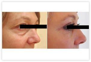 Blépharoplastie superieure et inférieure permettant un rajeunissement naturel du regard: retrait de l'excedent de peau au niveau des paupières supérieures et des poches sous les yeux sans hyper-correction