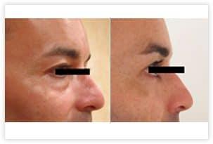 Résultat de blépharoplastie inférieure par voie conjonctivale qui a permis le retrait complet et définitif des poches graisseuses situées sous les yeux