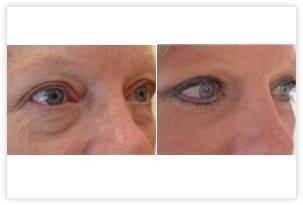 Chirurgie esthétique des paupières : traitement des excès de peau au niveau des paupières supérieures (cicatrice invisible dans le pli palpébral) avec retrait des poches graisseuses et de la patte d'oie pour un rajeunissement naturel du regard