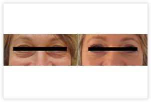 Blépharoplastie supérieure et inférieure avant après