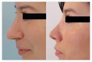 Chirurgie esthétique du nez - photo avant après