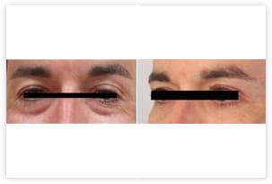Chirurgie esthétique des paupières inférieures
