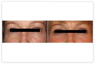 Chirurgie des paupières inférieures et supérieures