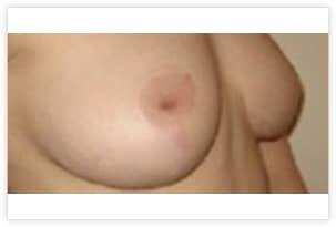 Cicatrice en T inversé pour réduction mammaire