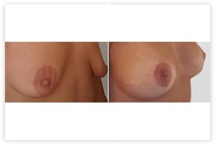 Prothèse mammaire avec plastie pour correction d'hypotrophie avec ptose