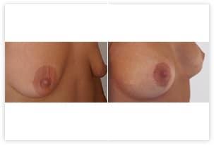 Plastie et prothèses mammaires pour hypotrophie avec ptôse