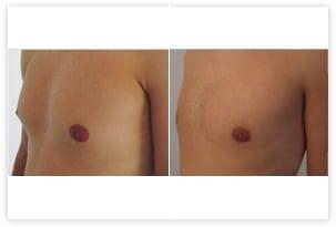 Correction d'une gynécomastie glandulaire et graisseuse - résultats à 12 jours