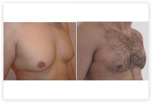 Correction de l'hypertrophie de la poitrine chez un homme