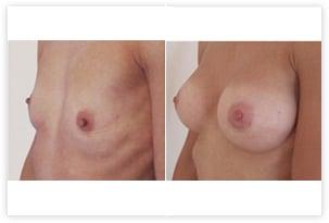 hypotrophie corrigée par pose d'implants