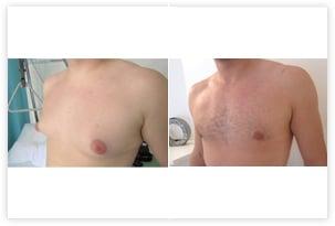 Autre résultat avant-après de correction bilatérale de gynécomastie