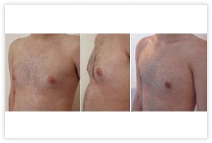 Gynécomastie à prédominance glandulaire chez un homme de 22 ans