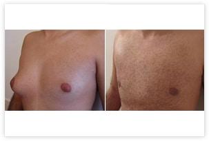Gynécomastie asymétrique : photo avant/après la correction bilatérale pour une poitrine plate