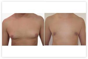 Gynécomastie graisseuse pure traitée par liposuccion chez un homme de 32 ans