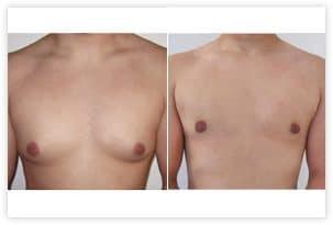 Gynécomastie mixte (glandulaire et graisseuse) chez un homme de 34 ans