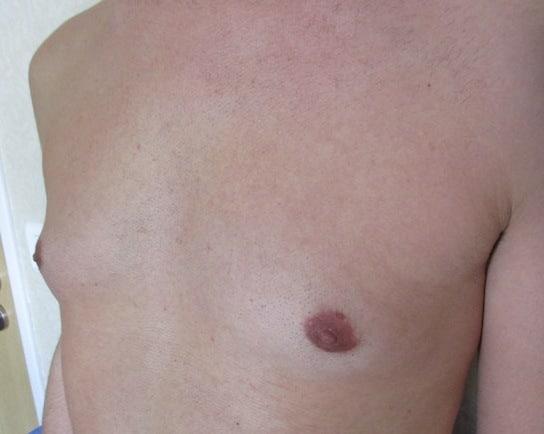 Photo de gynecomastie chez l'adolescent
