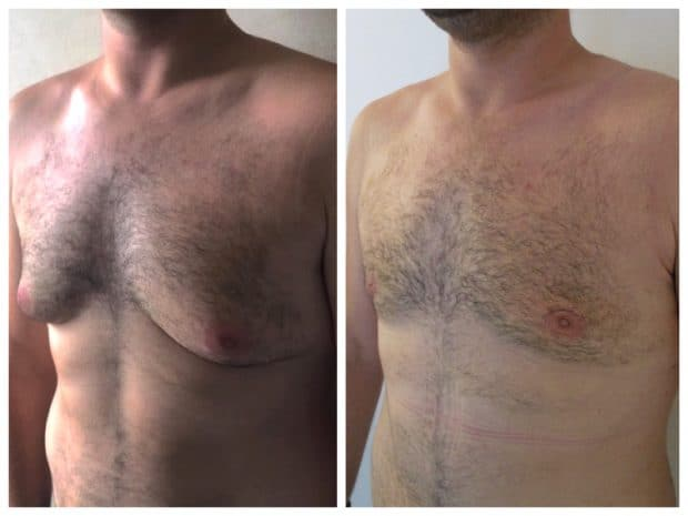 Résultat operation de gynecomastie sans cicatrices transversales