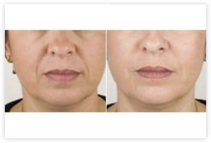 Injections d'acide hyaluronique avant/après (sillons naso-géniens)