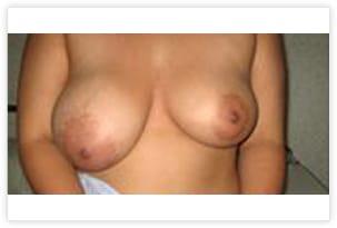 Hypertrophie unilatérale droite responsable d'une asymétrie de la poitrine