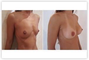 Hypotrophie mammaire corrigée par implants de 280cc