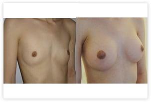 Hypotrophie mammaire prise en charge corrigée par prothèses rondes de 260cc