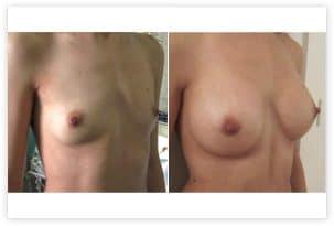Mise en place d'implants de taille de 260 cc disposés en arrière du muscle pectoral