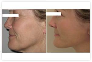 Lifting du visage et du cou avant/après