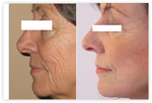 Lifting du visage avant/après
