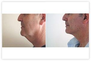 Correction du double menton et des bajoues chez un homme avant/après