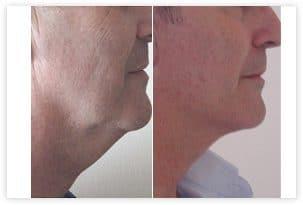 Lifting du visage et du cou chez un homme avant/après
