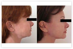 Photo avant après lifting du visage chez une femme de 50 ans corrigeant les bajoues et l'excès cutané au niveau du cou