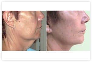 Lifting facial et du cou avant/après