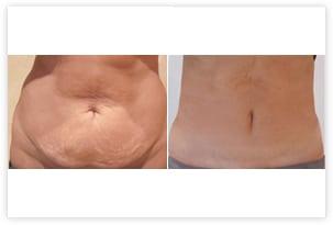 Abdominoplastie localisée (mini-abdominoplastie) avec liposuccion du ventre