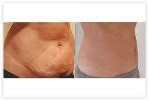 Mini-lifting abdominal (mini-abdominoplastie) avec lipoaspiration du ventre