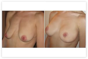 Ptose corrigée par plastie prothèses mammaires (220cc)