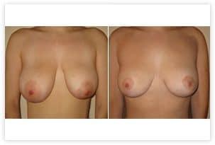 Correction de ptose mammaire avec cicatrice en T inversé