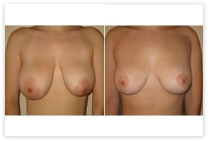 Réduction mammaire avec correction d'asymétrie