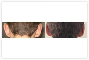 Chirurgie esthétique des oreilles décollées avant/après
