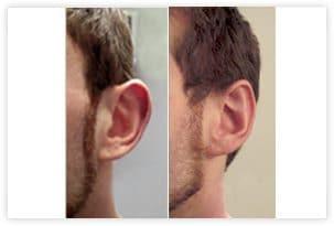 Opération des oreilles décollées avant/après