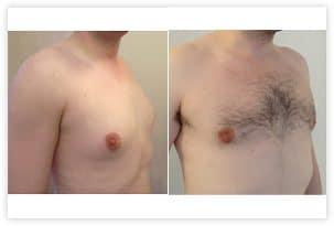Photo de gynecomastie glandulaire et graisseuse traitée