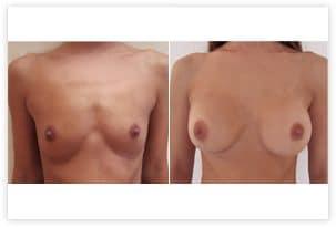 Prothèses mammaires rondes de 280cc en position rétromusculaire