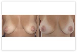 Prothèse mammaire sans plastie (demande de la patiente) 240cc