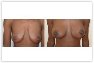 Plastie prothèses mammaires à cicatrice en T