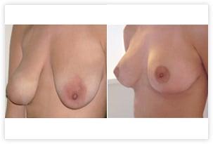 Correction de ptose mammaire avant/après