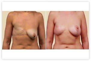 Reconstruction mammaire avant/après