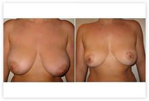 Diminution de la poitrine pour hypertrophie