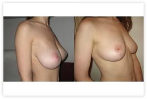 Réduction mammaire pour hypertrophie mammaire avant/après