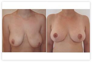 Cure de ptose avec réduction mammaire de 100g à gauche pour correction d'asymétrie