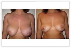 Réduction des seins avant/après en raison d'une hypertrophie de la poitrine