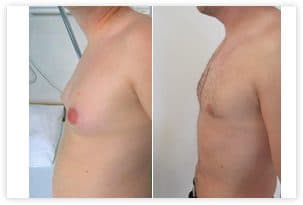 correction exces graisseux ventre poitrine
